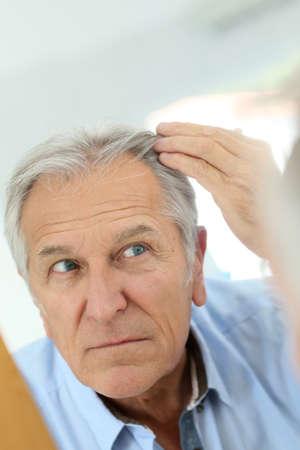 calvicie: Hombre mayor preocupación por la pérdida del cabello Foto de archivo