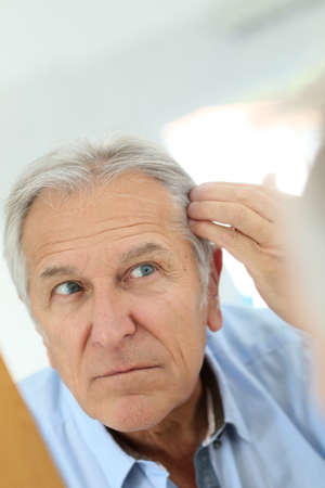 aging: Senior man concerned by hair loss