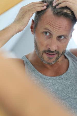 preocupacion: Hombre de mediana edad preocupado por la pérdida de cabello