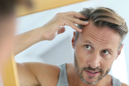 hombres maduros: Hombre de mediana edad preocupado por la pérdida de cabello