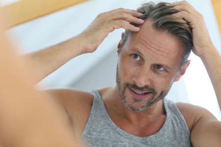 man hair: Middle-aged man concerned by hair loss Stock Photo