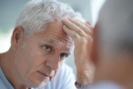 Senior man treating hair loss