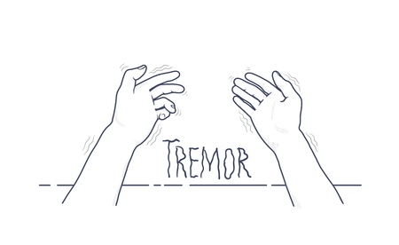 Tremor hands. First-person view of shaking hands.
