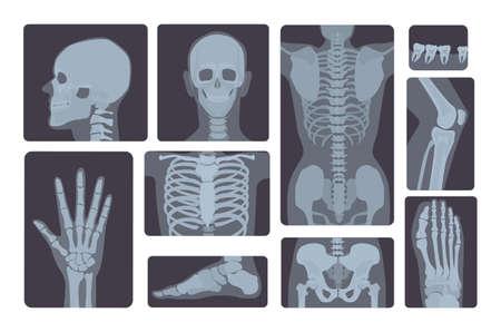 Colección realista de tomas de rayos X. La mano, la pierna, el cráneo, el pie, el pecho, los dientes, la columna vertebral y otros del cuerpo humano.