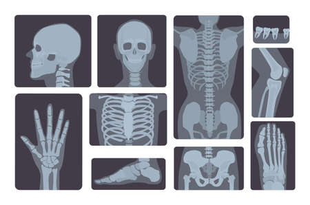 Realistic x-ray shots collection. Human body hand, leg, skull, foot, chest, teeth, spine and other. Illustration