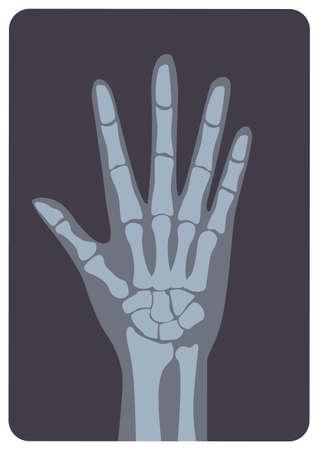 Radiografía, imagen de radiación X o imagen de rayos X de la mano o la palma con la muñeca y los dedos. Radiografía médica moderna y sistema esquelético humano. Ilustración de vector monocromo en estilo de dibujos animados plana.