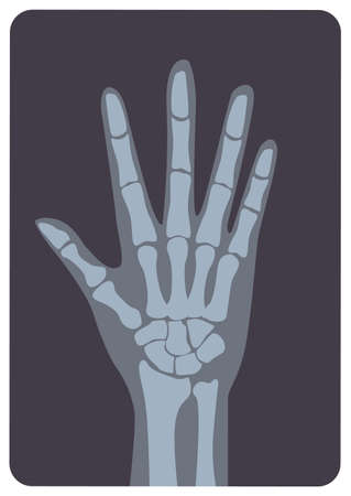 Radiograph, X-radiation picture or X-ray image of hand or palm with wrist and fingers. Modern medical radiography and human skeletal system. Monochrome vector illustration in flat cartoon style.