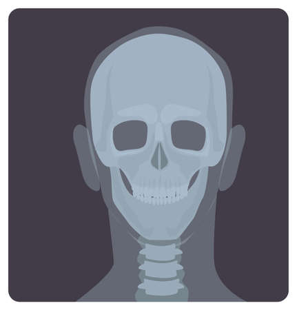 Frontal radiograph of skull. X-radiation picture or X-ray image of head, front view. Modern medical radiography and human skeletal system. Monochrome vector illustration in flat cartoon style.