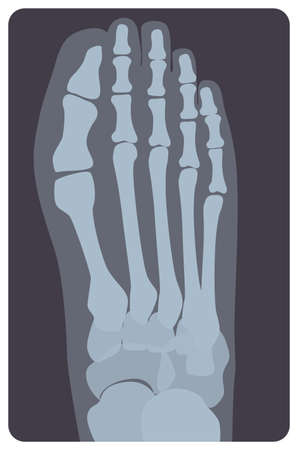 Superior radiograph of human right foot or limb. X-ray picture or radiographic monitor image of metatarsus bones and toes, top view. Medical radiology. Monochrome vector illustration in flat style Illustration