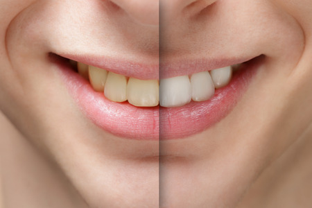 young man smile before and after teeth whitening, close up photo