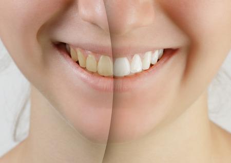 십대 소녀 전에 치아 미백 후 미소
