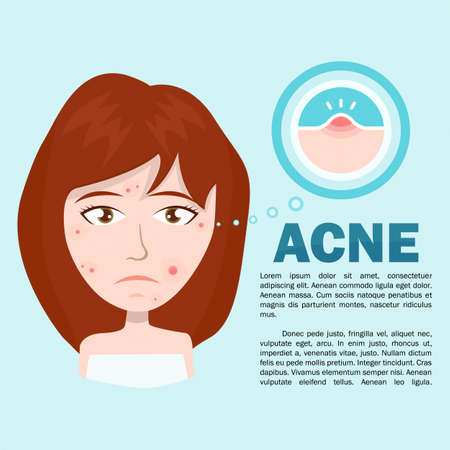 Unhappy teen girl struggling with acne. Skin face problem concept Illustration