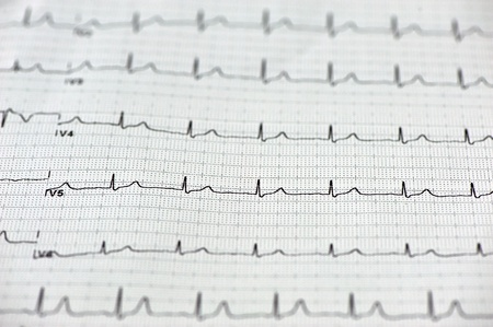 Close up of ECG  electrocardiogram  paper  photo