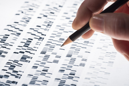 researching: Scientists examined DNA gel that is used in genetics, medicine, biology, pharma research and forensics. Stock Photo