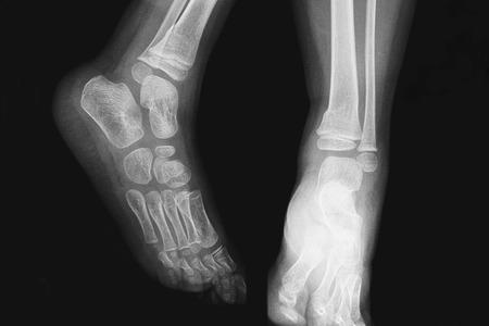 X-ray snapshot of children photo