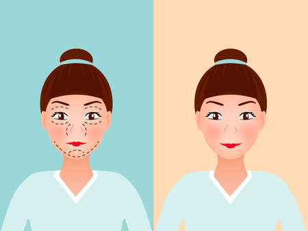 liposuction: Drawing perforation lines on young pretty womans face for plastic surgery, Before and after procedure. Illustration