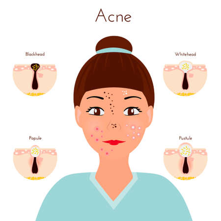 sebaceous gland: Skin problems Girl closse up face with different types of acne pimples, Facial treatments and problems vector illustration, Whiteheads and Blackheads, Papules and Pustules, stages of development