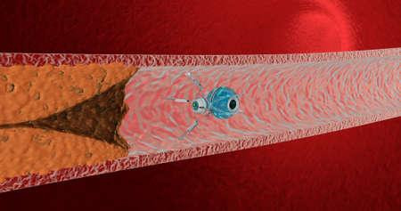 Nanorobot w naczyniu krwionośnym znajduje blaszki cholesterolowe i usuwa je. Koncepcja przyszłości. renderowanie 3D