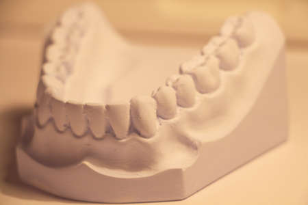 anterior view of dental cast made from blue stone plaster in orange light Stock Photo - 23294469