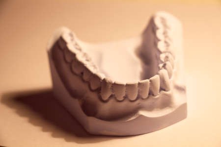 anter profile view of dental casting Stock Photo - 23294489