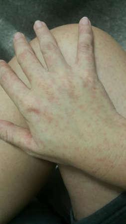 acute: Acute urticaria itchy rash skin Stock Photo