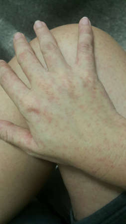 rash: Urticaria aguda de la piel erupci�n cut�nea con picaz�n Foto de archivo