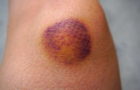 seeping: Bruise on wounded woman leg skin