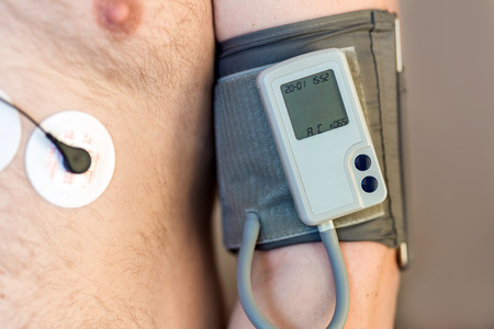 Holter monitor device and daily blood pressure recorder on human male body. Daily cardiogram monitoring. Overweight person. High risk of cardial disease. Health care and disease prevention Stock Photo