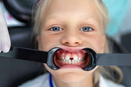 Little blond kid girl at dentist office showing malocclusion and diastema overbite teeth missing gap. Child during orthodontist visit and oral cavity check-up. Children tooth care and hygiene