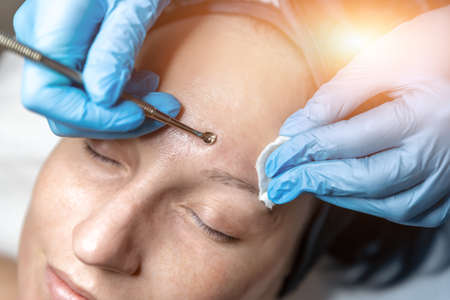 Close-up detail of beautician doctor hand in blue rubber protective gloves make blackhead spot pimples removal procedure for young adult female patient. Woman facial cleansing and skin care concept Stockfoto