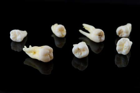 Torn human teeth on a black background. Close-up photo of spoiled molars and premolars. Selective focus.