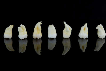 Removed diseased human teeth stacked in a row on a black background. Close-up photo of spoiled molars and premolars.