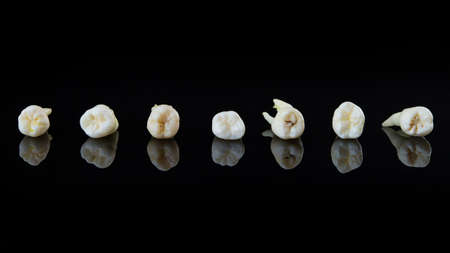 Torn human teeth stacked in a row on a black background. Close-up photo of spoiled molars and premolars.