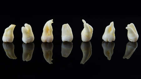 Removed diseased human teeth stacked in a row on a black background. Close-up photo of spoiled molars and premolars. Stock Photo