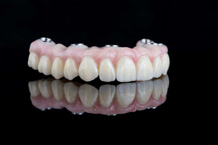 Quality dental prosthesis made of titanium beam and ceramics for fixation to the upper jaw. Teeth treatment.
