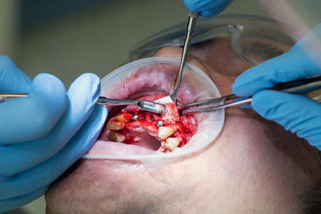 Surgery operation to install four dental implants on the upper jaw. Dental care and treatment. Teeth problems.