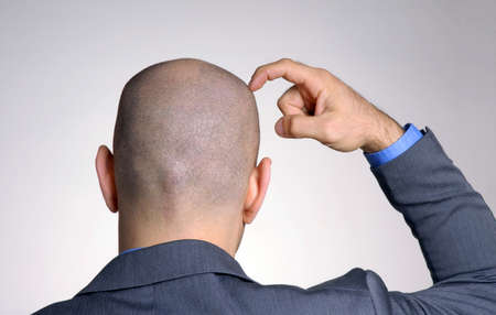 Bald businessman is scratching his head Stock Photo