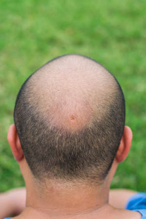 hair part: A crater in the middle of the head of a fat guy
