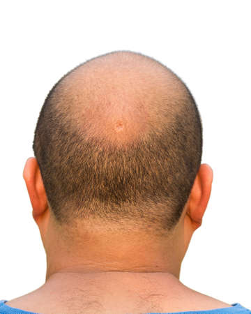 Bald head isolation of a fat guy photo