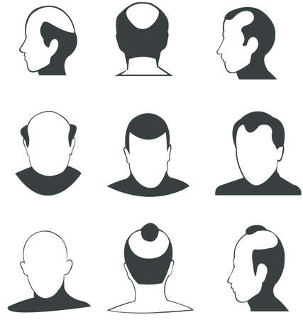 alopecia: Silhouette bald heads  collection  in various type and angle