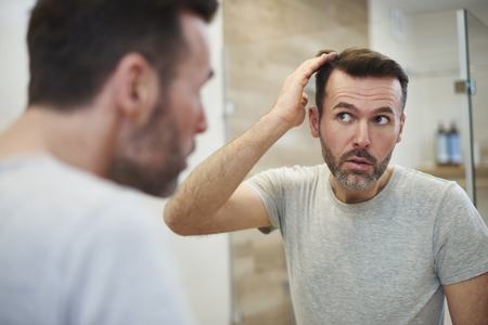 Mature men is worried about hair loss Stock Photo