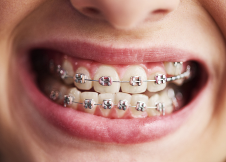 Shot of child's teeth with braces 写真素材