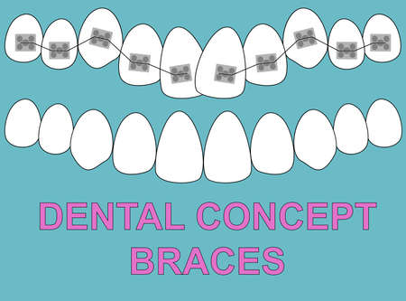 Banner Upper Braces teeth illustration vector on blue background. Dental concept Ilustração