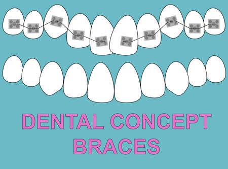 Banner Upper Braces teeth illustration vector on blue background. Dental concept Illustration