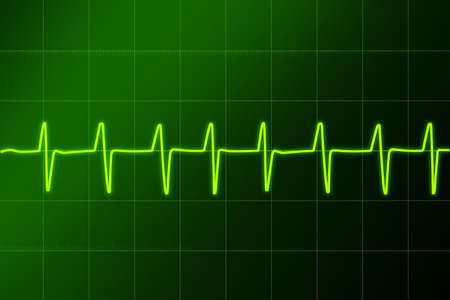 diagnoses: Electronic cardiogram Hospital. Ritm sign in.Cardiogram - hospital Stock Photo