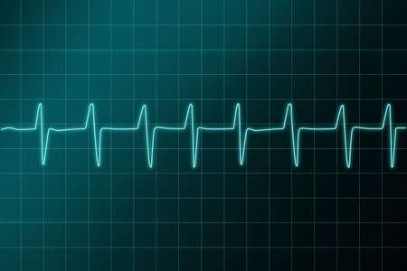 cardioid: Electr�nica CARDIOGRAMA   Hospital.   Ritm signo in.Cardiogram - hospital