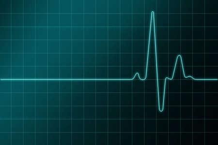 electrocardiograma: Los amantes del coraz�n CARDIOGRAMA  Foto de archivo