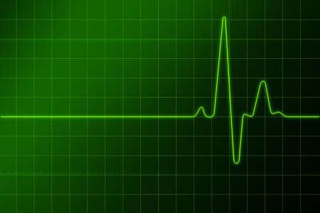 Electronic cardiogram  photo