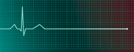 Heart pulse monitor with flatline  Illustration