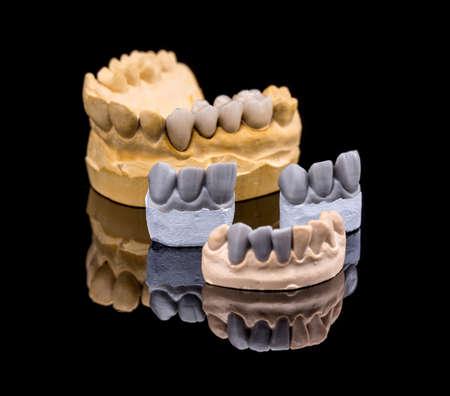 Set van kunstgebitten. Valse tanden op zwarte achtergrond